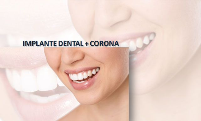 Picture 40 of Clínicas dentales in Madrid | Clínica Dental Reina Victoria 23