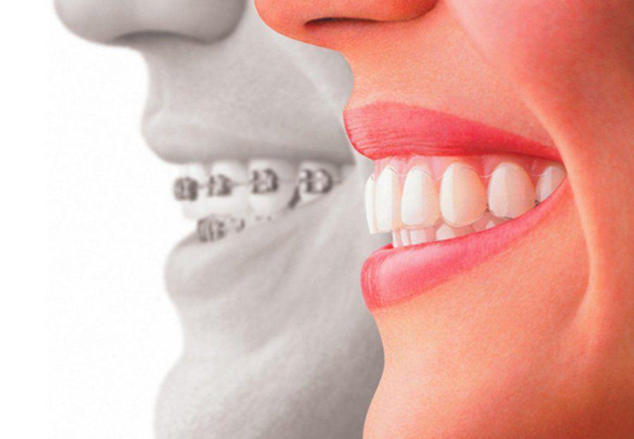 Ortodoncia invisible (INVISALIGN): Nuestros servicios de Clínica Dental Gándara