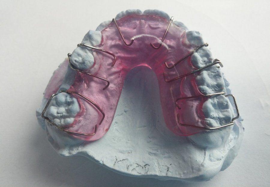 Ortodoncia removible: Nuestros servicios de Clínica Dental Gándara