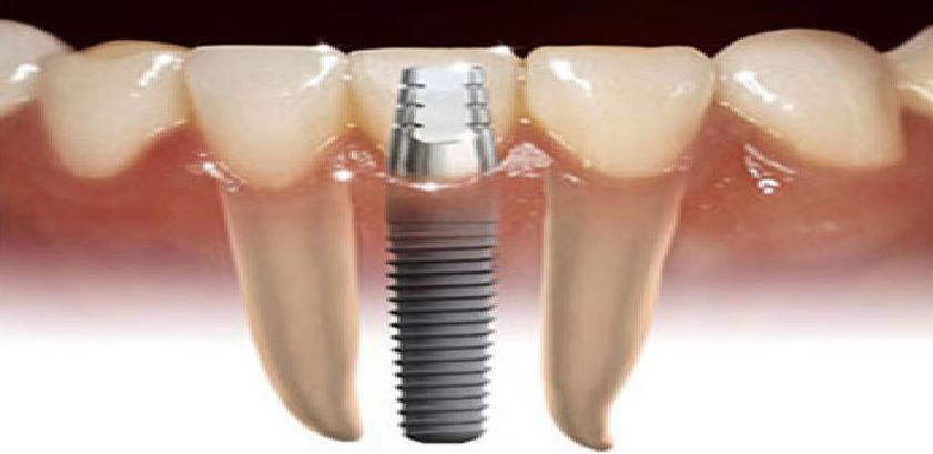 Implantes: Catálogo de Clínica Dental Dra. Miriam Signorini