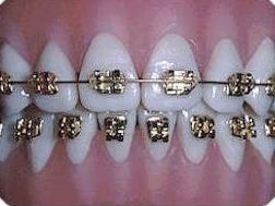 Foto 11 de Dentistas en Bargas | Clínica Dental Dra. Miriam Signorini