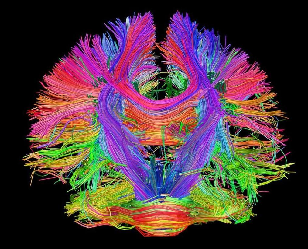 La naturaleza del cerebro
