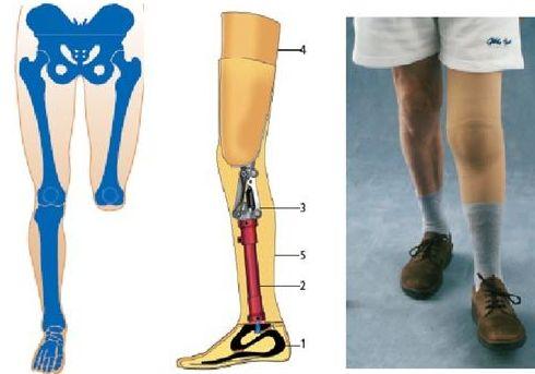 Prótesis de pierna: Productos y servicios de Ortopedia Delgado, S. L.