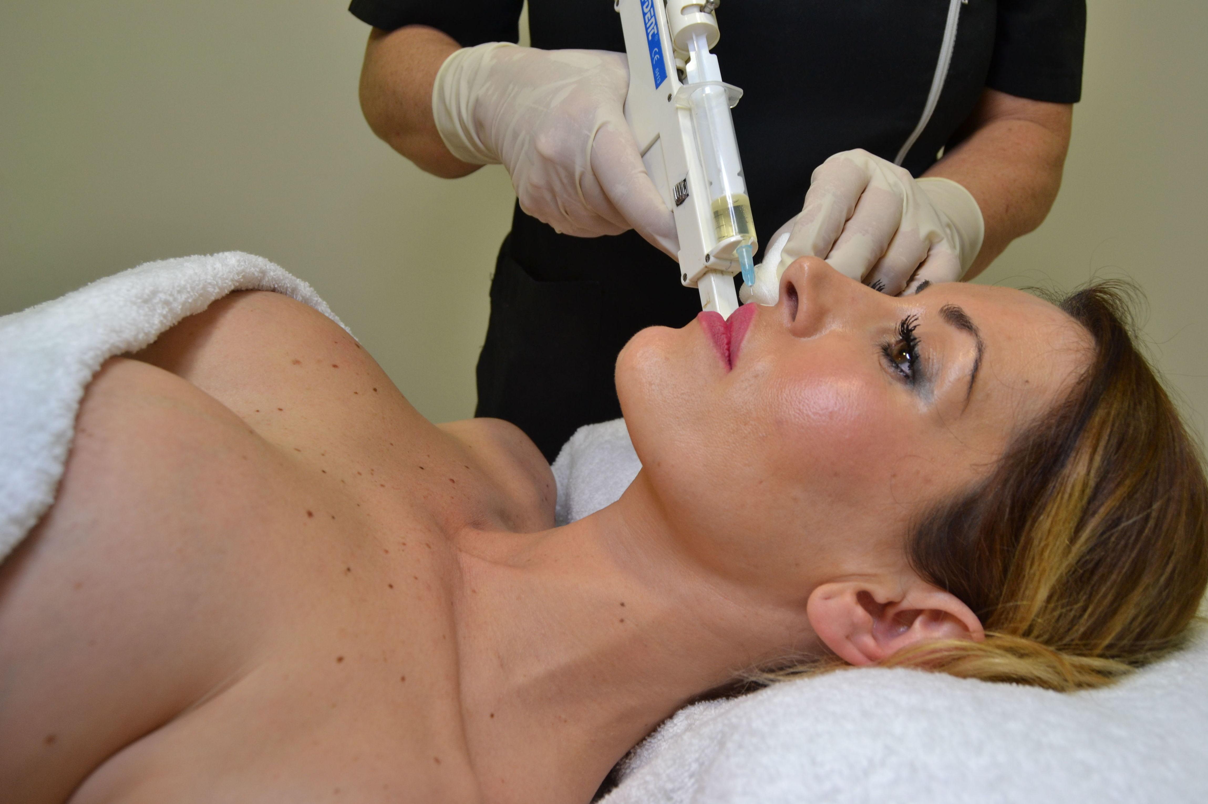 Tratamientos con ácido hialurónico en Alicante