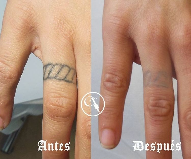 Eliminación de tatuaje en dedo