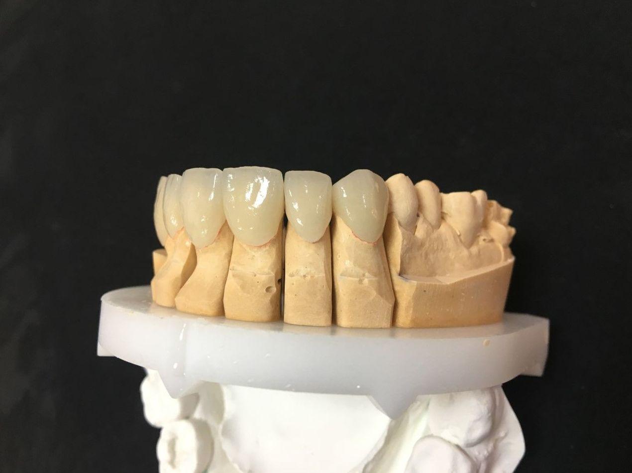 Foto 33 de Laboratorio dental en Tegueste | Dentallabor Dirks
