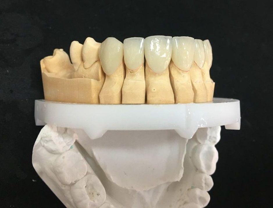 Foto 37 de Laboratorio dental en Tegueste   Dentallabor Dirks