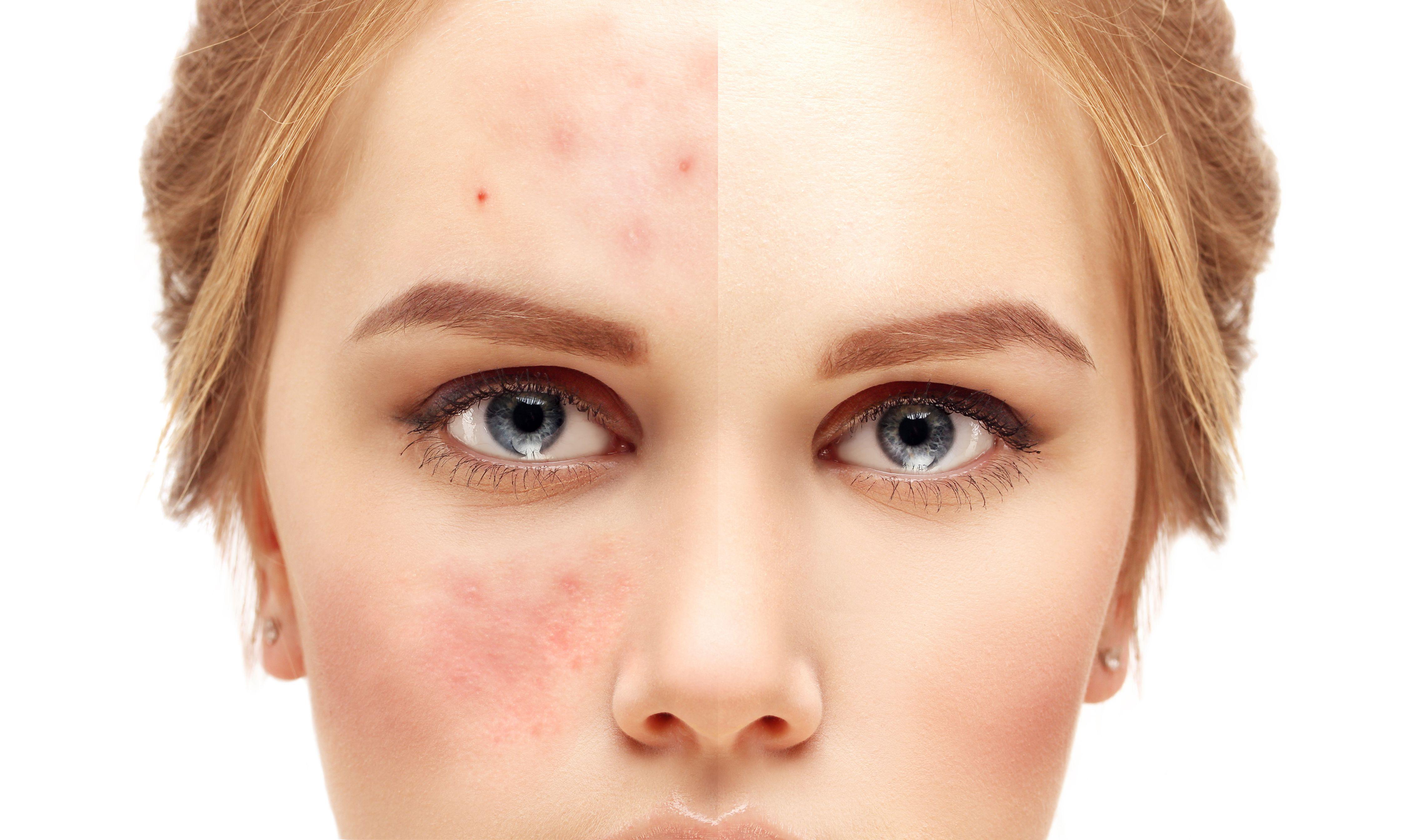 Tratamientos para manchas y cicatrices: Nuestros servicios de Estética Aloe
