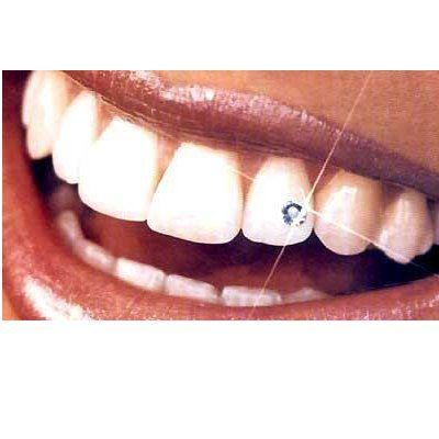 Estética dental: piercing dental: Tratamientos de Clínica Dental Beyer