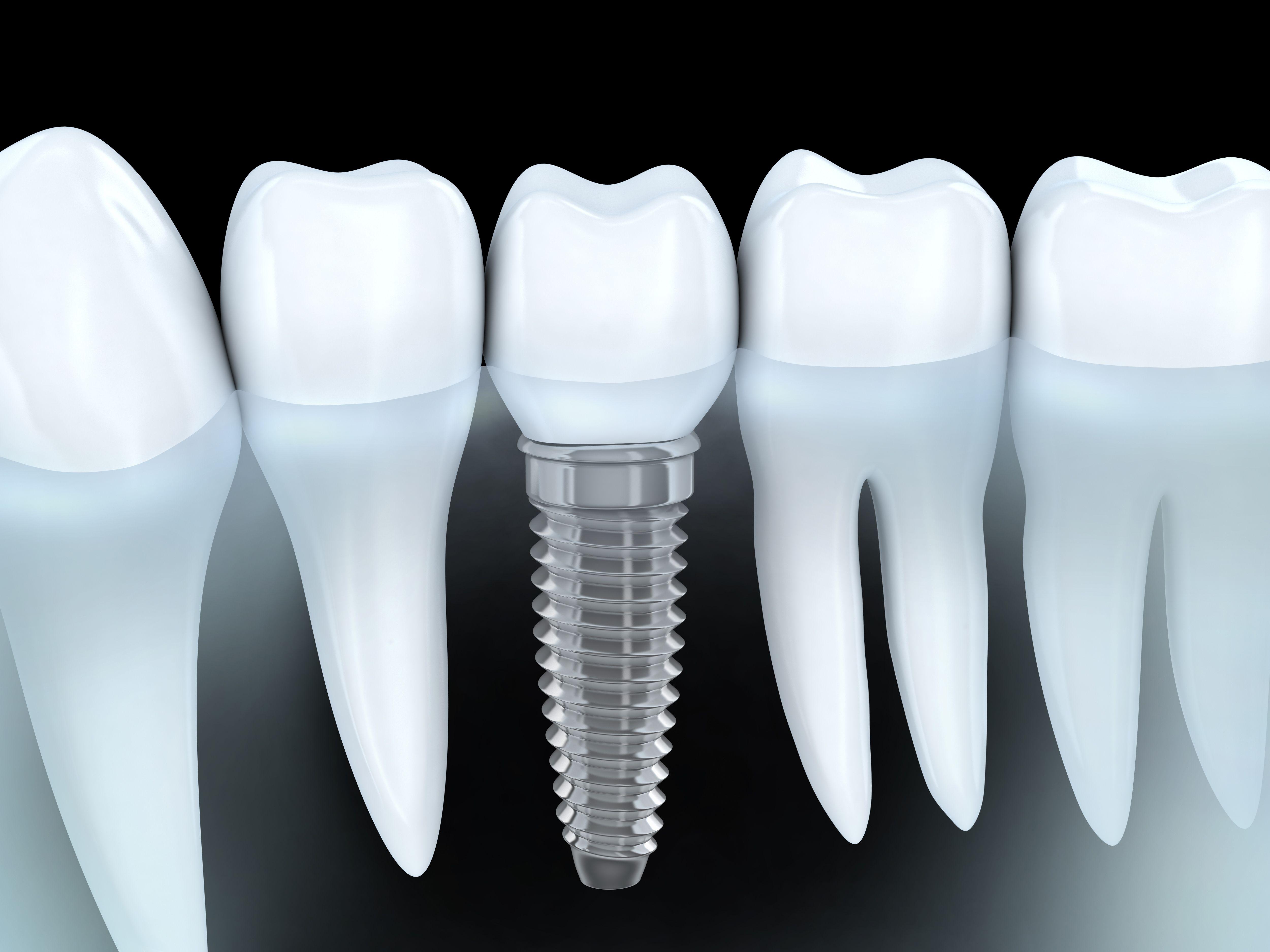 Implantología: Tratamientos de Clínica Dental Beyer