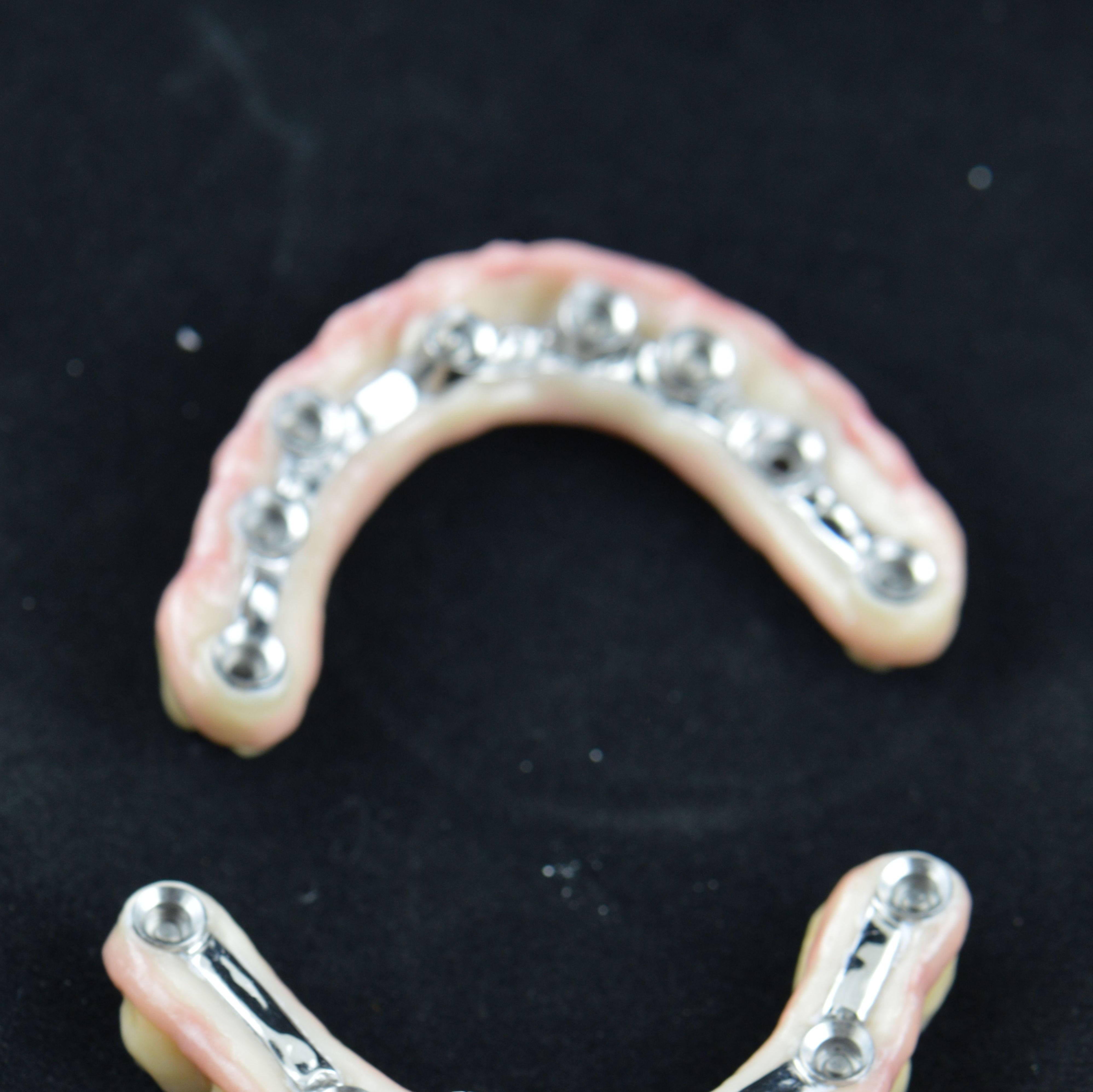 Foto 8 de Protésicos dentales en Santiago de Compostela | Tecnolab Dental Galicia