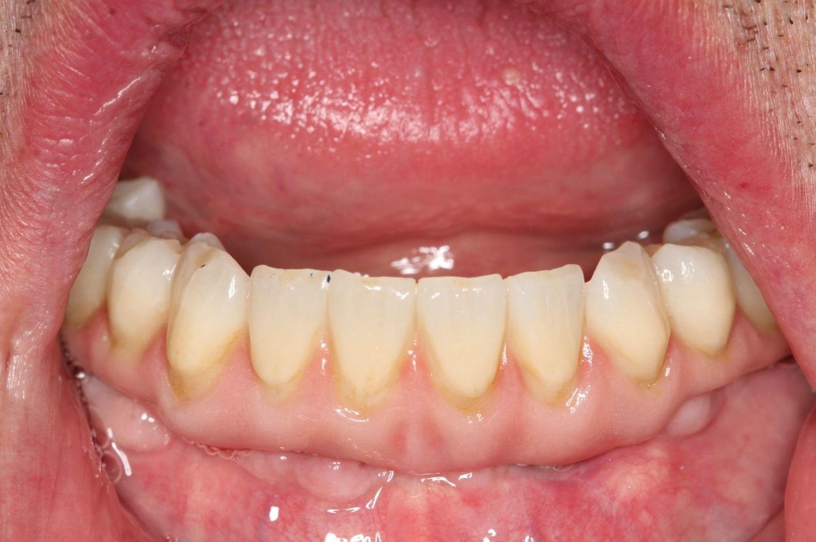 Foto 5 de Protésicos dentales en Santiago de Compostela   Tecnolab Dental Galicia