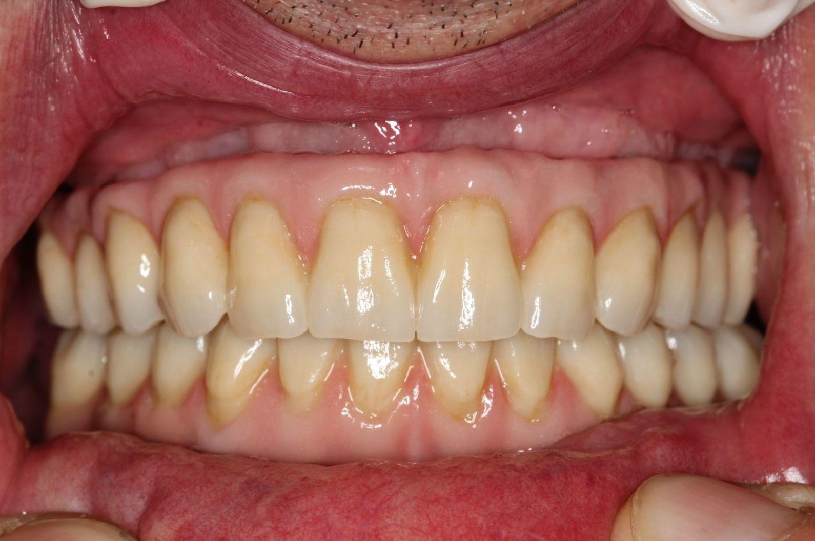 Foto 2 de Protésicos dentales en Santiago de Compostela | Tecnolab Dental Galicia