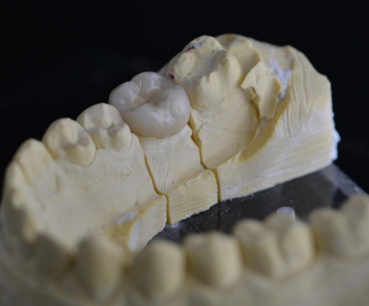 Foto 57 de Protésicos dentales en Santiago de Compostela | Tecnolab Dental Galicia