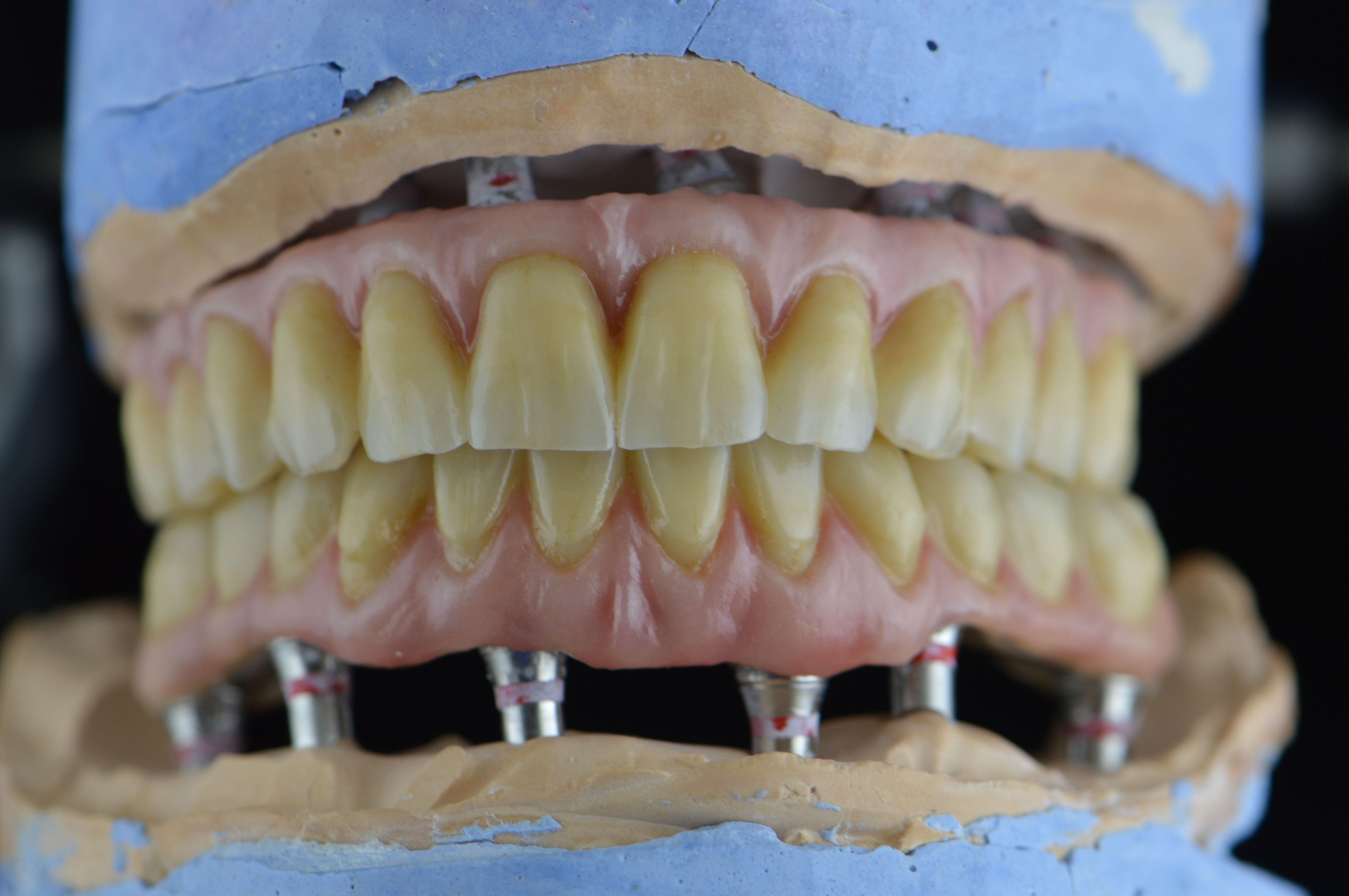 Foto 1 de Protésicos dentales en Santiago de Compostela | Tecnolab Dental Galicia