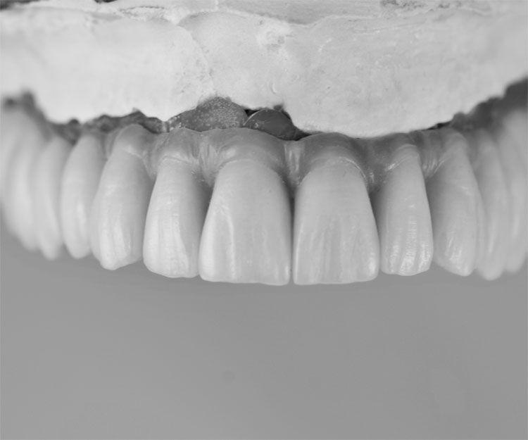 Prótesis dentales en A Coruña