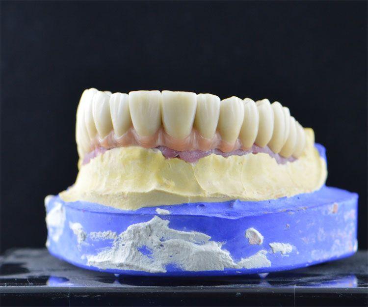 Laboratorio de prótesis dentales en A Coruña