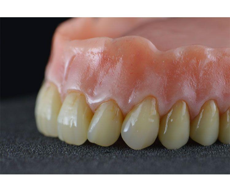 Prótesis dentales de calidad en A Coruña