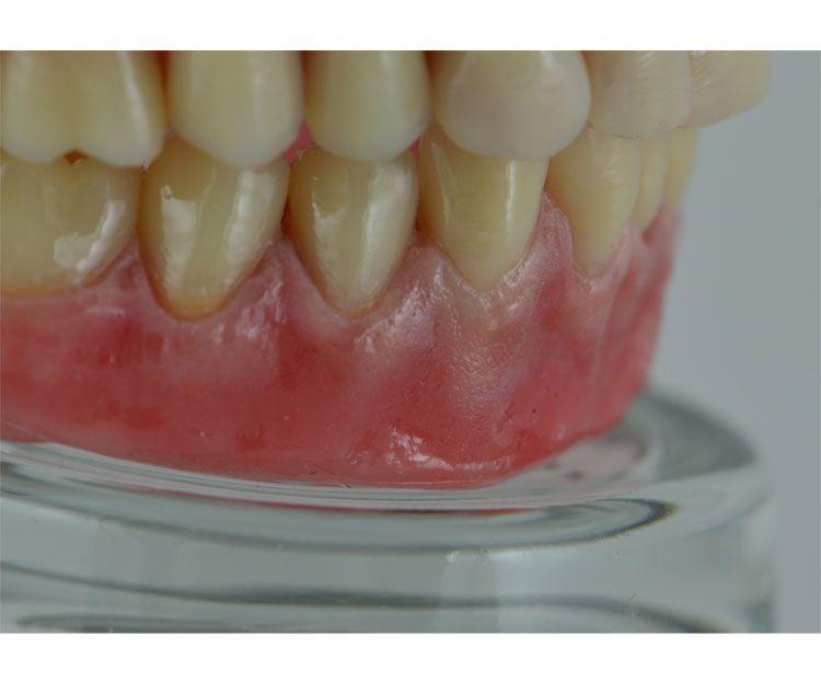 Las mejores prótesis dentales en A Coruña