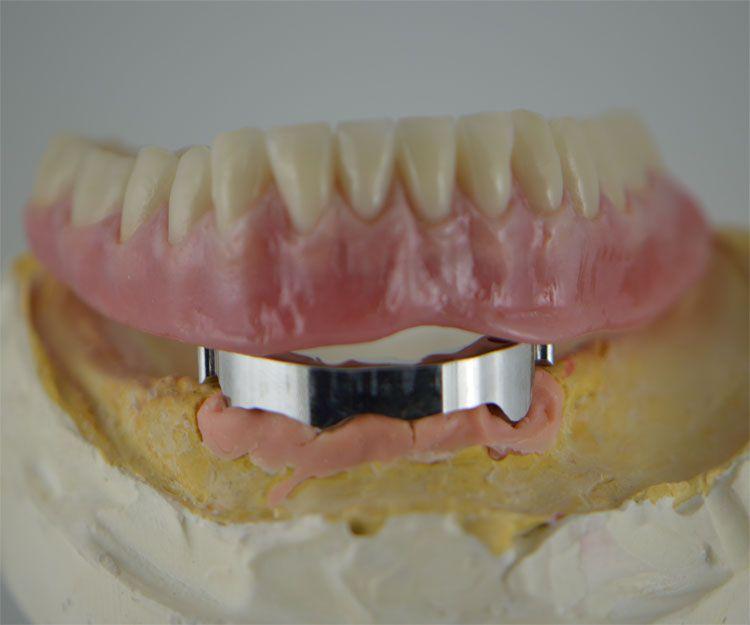 Los mejores protésicos dentales de A Coruña
