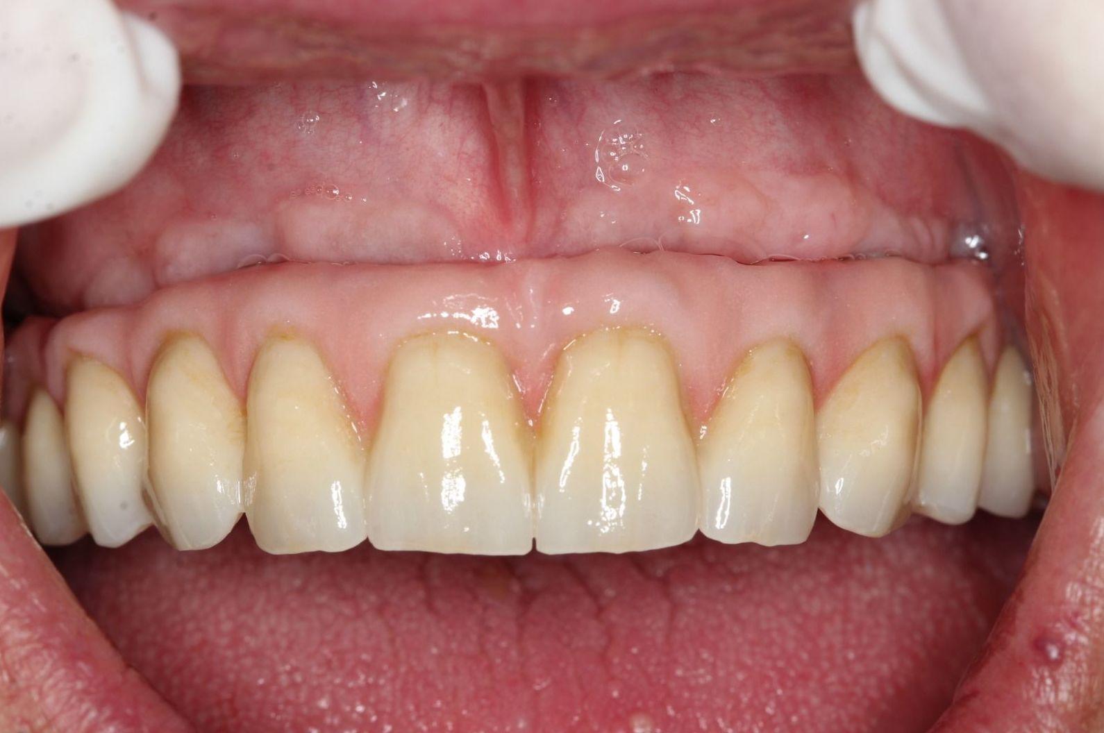 Foto 3 de Protésicos dentales en Santiago de Compostela | Tecnolab Dental Galicia