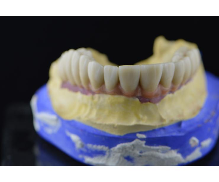 Foto 59 de Protésicos dentales en Santiago de Compostela | Tecnolab Dental Galicia