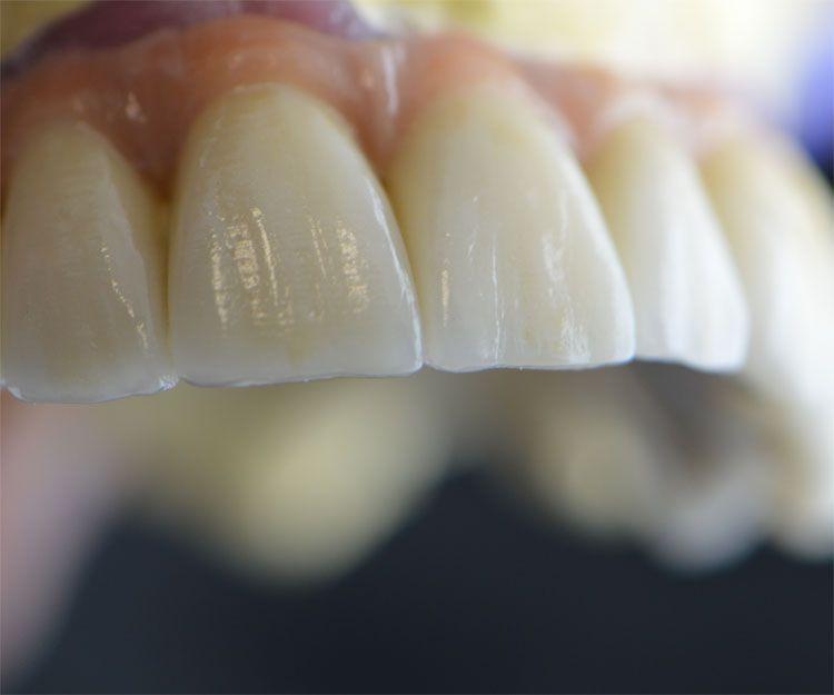 Especialistas en prótesis dentales en A Coruña