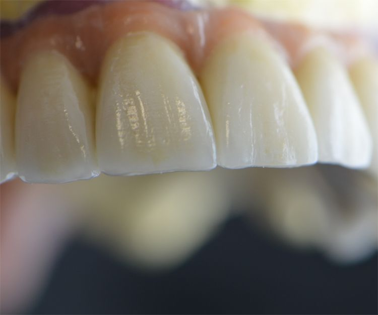 Trabajos dentales de alta precisión