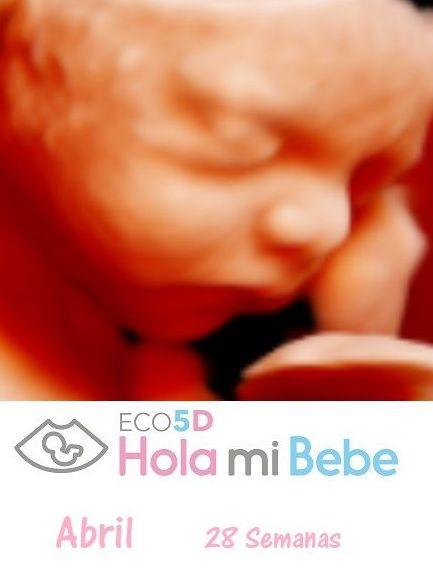 ECO GEMELAR 120 € (oferta abril de 2018) : Servicios de Eco 5D Hola Mi Bebe