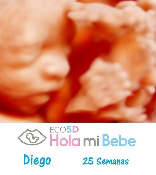 bebé de 25 semanas