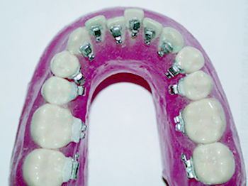 Foto 7 de Ortodoncia en Donostia-San Sebastián | Clínica Ortodoncia María Dolores Olaizola