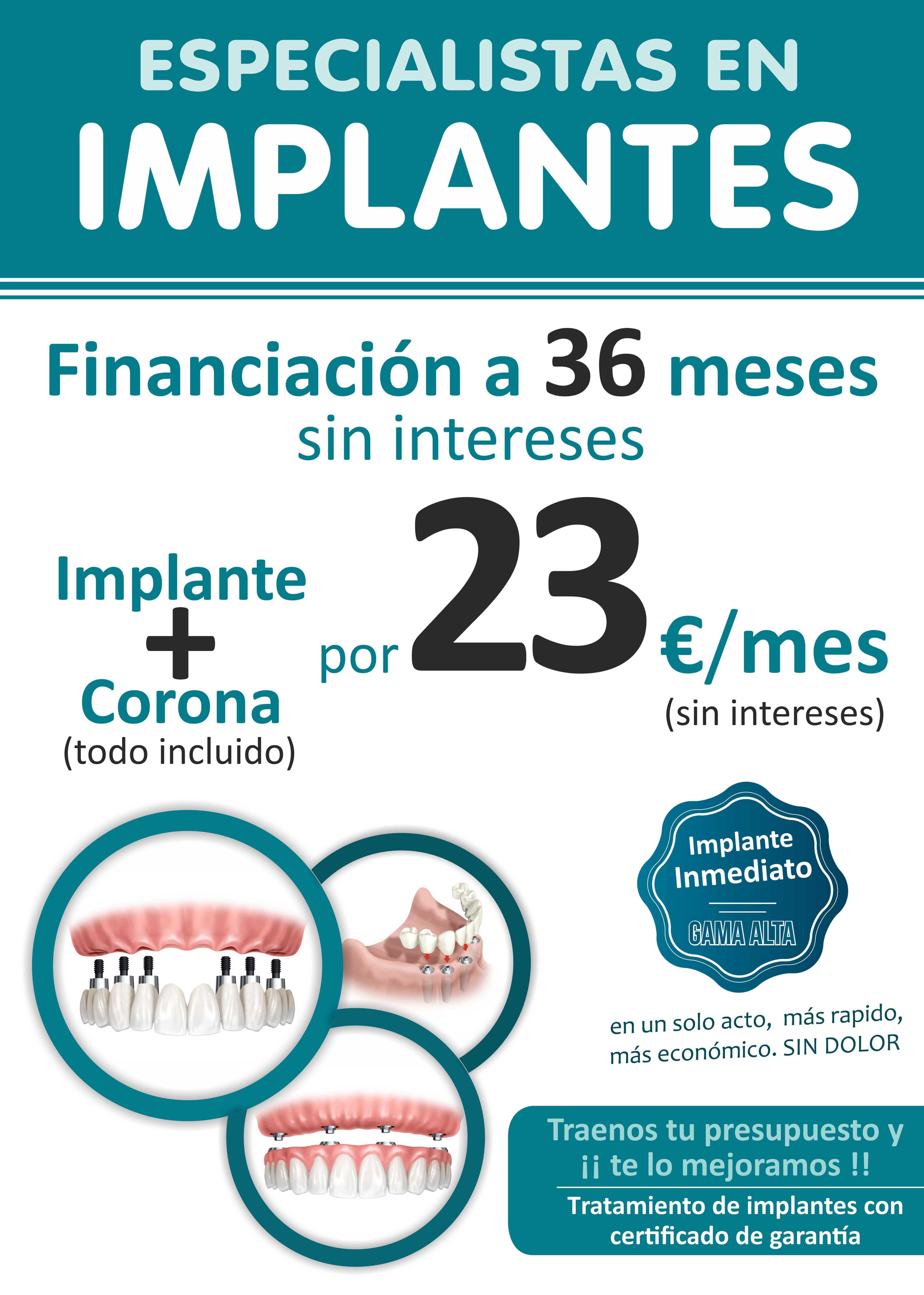 IMPLANTES FINANCIADOS SIN INTERESES
