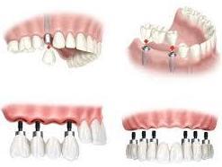 Foto 9 de Dentistas en  | Clínica Dental Humanes 61
