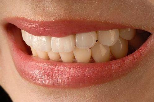 Carillas estéticas: Tratamientos de Clínica Dental Humanes 61