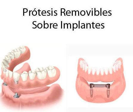 Prótesis removibles sobre implantes