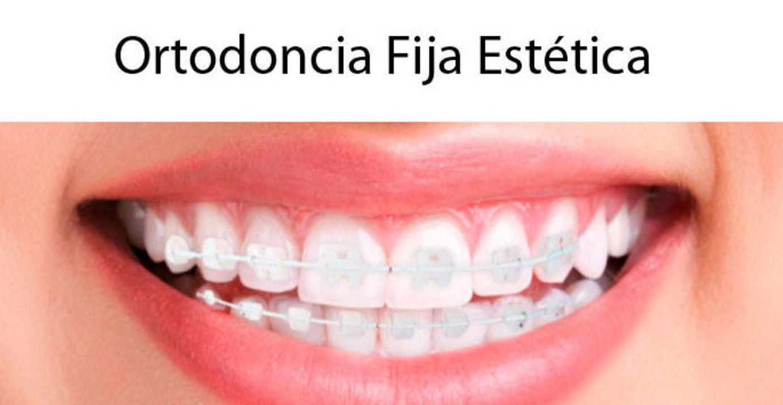 Ortodoncia fija estética