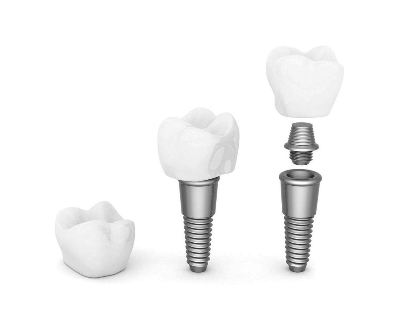 Colocación de implantes