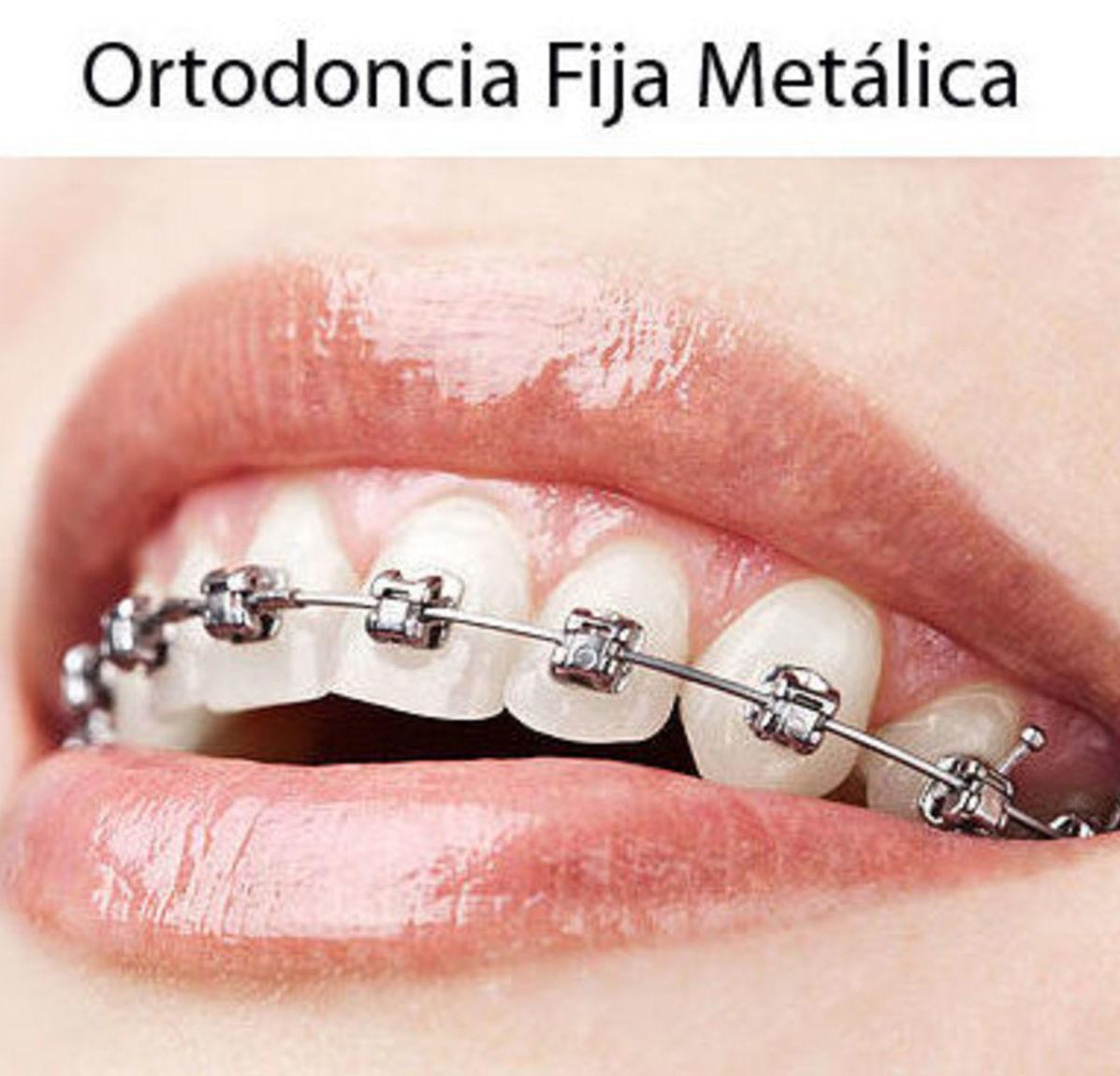 Ortodoncia fija metálica