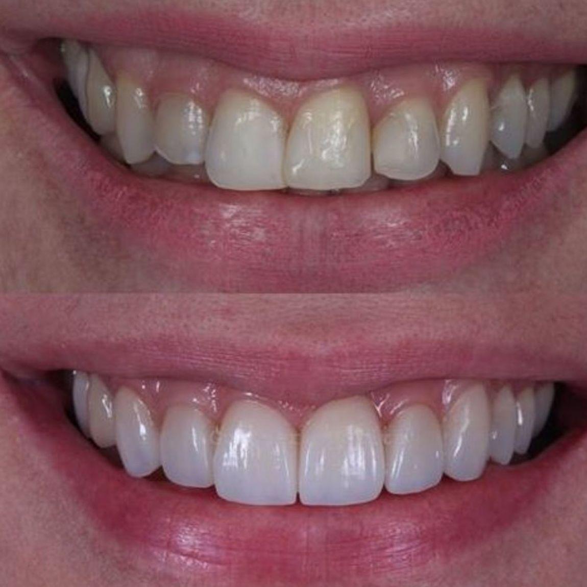 Blanqueamientos dentales en Eurodent