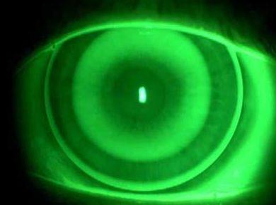 Lentes de contacto en córneas irregulares: Catálogo de Centro Óptico Esther