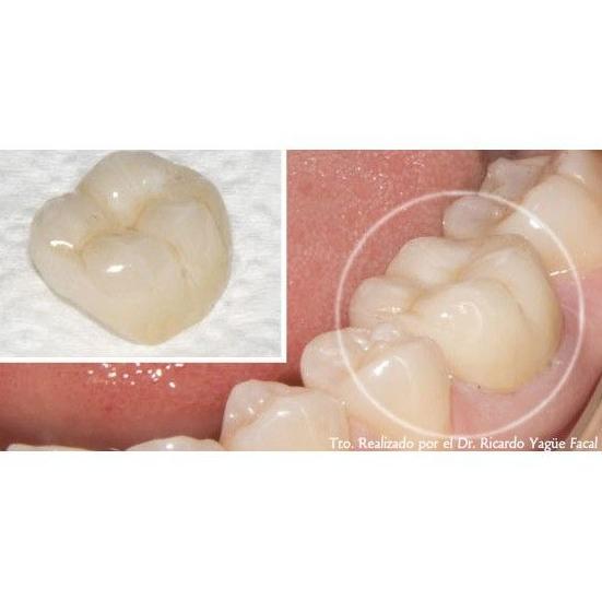 Estética Dental: Catálogo de Clínica Facal