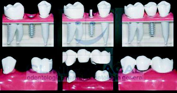 Foto 3 de Dentistas en Vigo | Clínica Facal