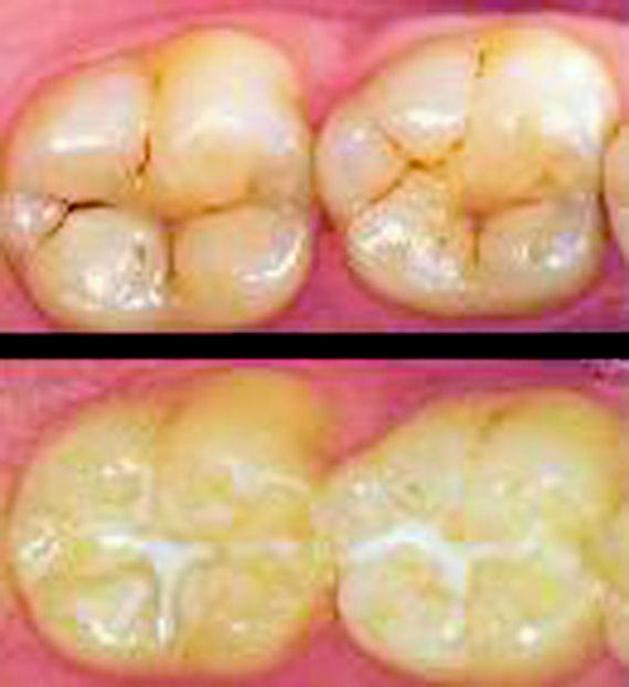 Foto 6 de Dentistas en Vigo   Clínica Facal