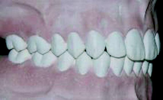 Foto 7 de Dentistas en Vigo   Clínica Facal