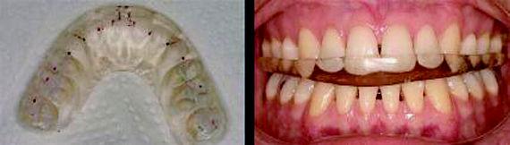 Foto 4 de Dentistas en Vigo | Clínica Facal