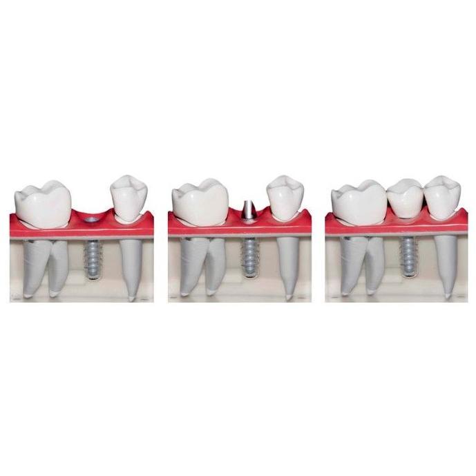 Implantes: Catálogo de Clínica Facal