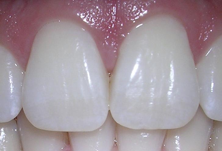 Blanqueamiento Dental: Catálogo de Clínica Facal