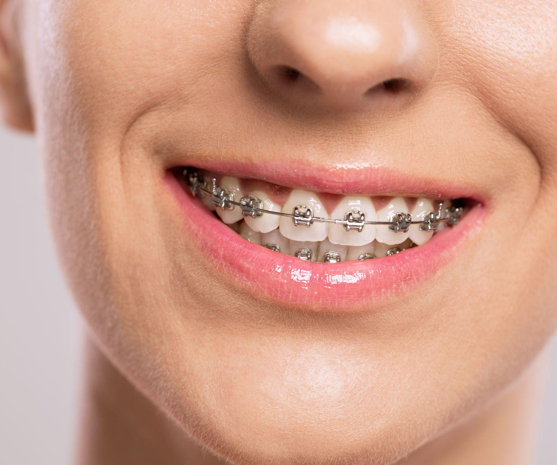 Ortodoncias en Moratalaz