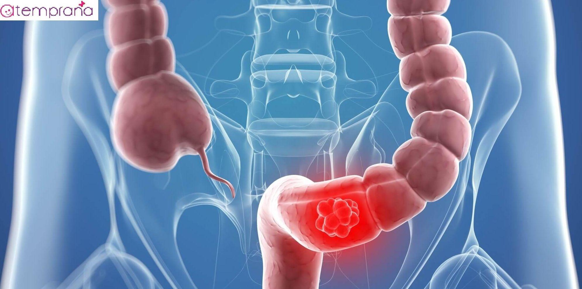 cncer de colon