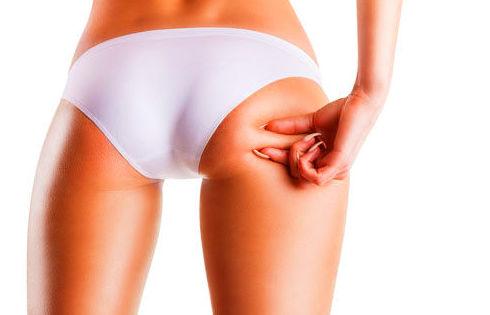Tratamientos corporales: Tratamientos estéticos de Centro de Belleza Venus